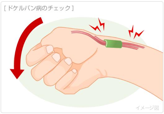 腱鞘炎のチェック①
